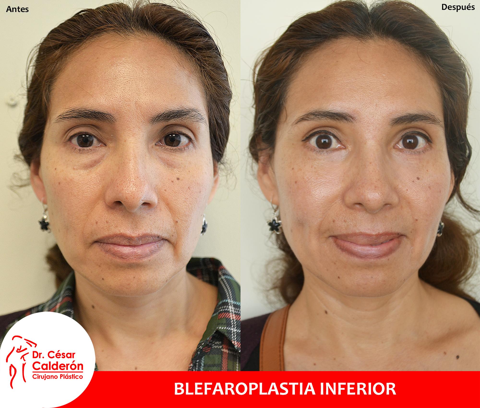 Clínica de la Belleza - Blefaroplastia-inferior-+-botox
