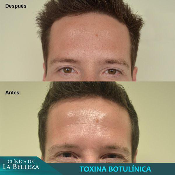Aplicación de toxina botulínica y Ácido Hialurónico