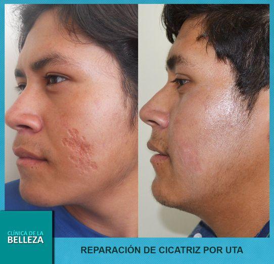Cirugia L 225 Ser De Cicatrices Acn 233 Estrias Lunares Y