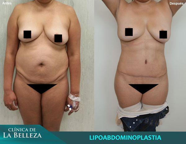 Lipoabdominoplastia (Sal facial Saldanha)