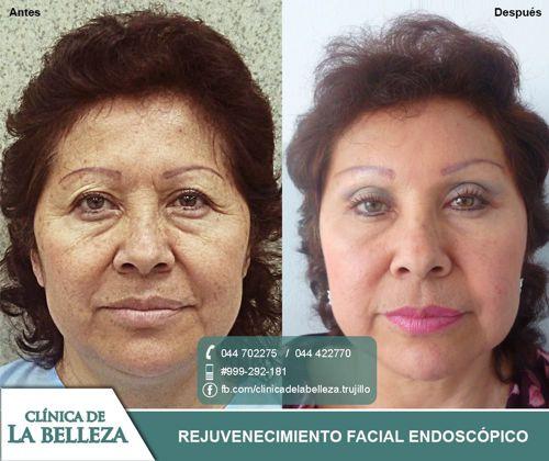 Rejuvenecimiento facial endoscópico