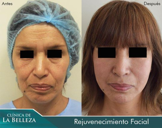 Rejuvenecimiento facial volumétrico con células madre