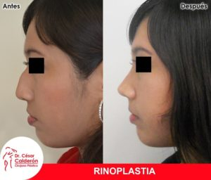 Rinoplastia 11