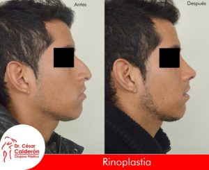 Rinoplastia 13