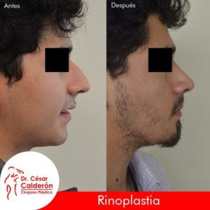 Rinoplastia 14