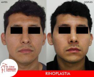 Rinoplastia 24