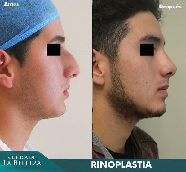 Rinoplastia estética para hombre