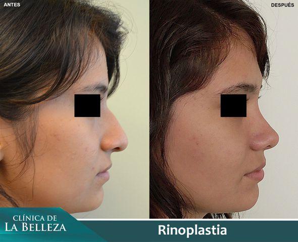 Rinoplastia estética para mujer