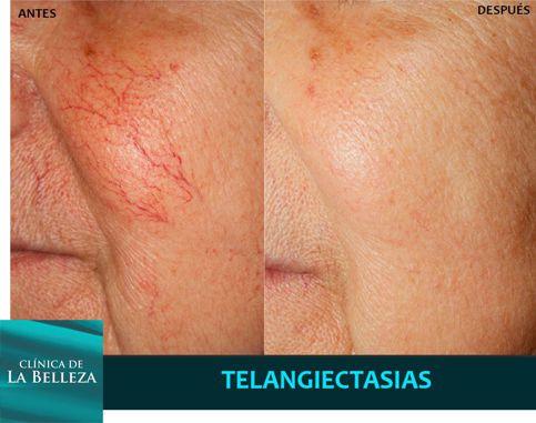 Tratamiento de telangectasias (arañitas) con láser Neodiminio Yag