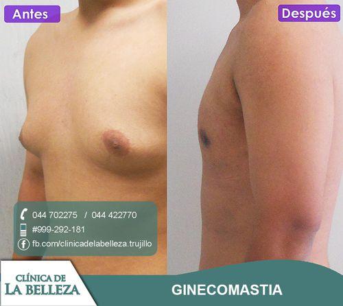 Tratamiento quirúrgico de ginecomastia con cicatrices mínimas