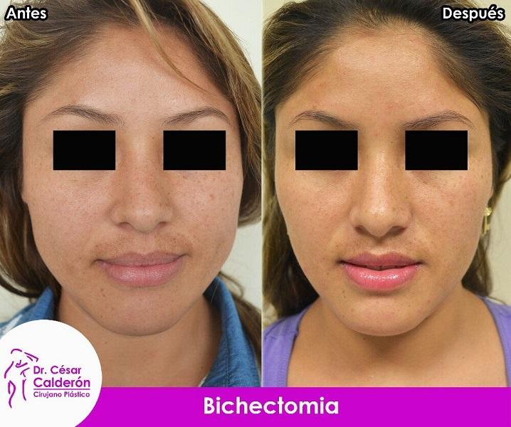 Afinamiento facial (bichectomia)